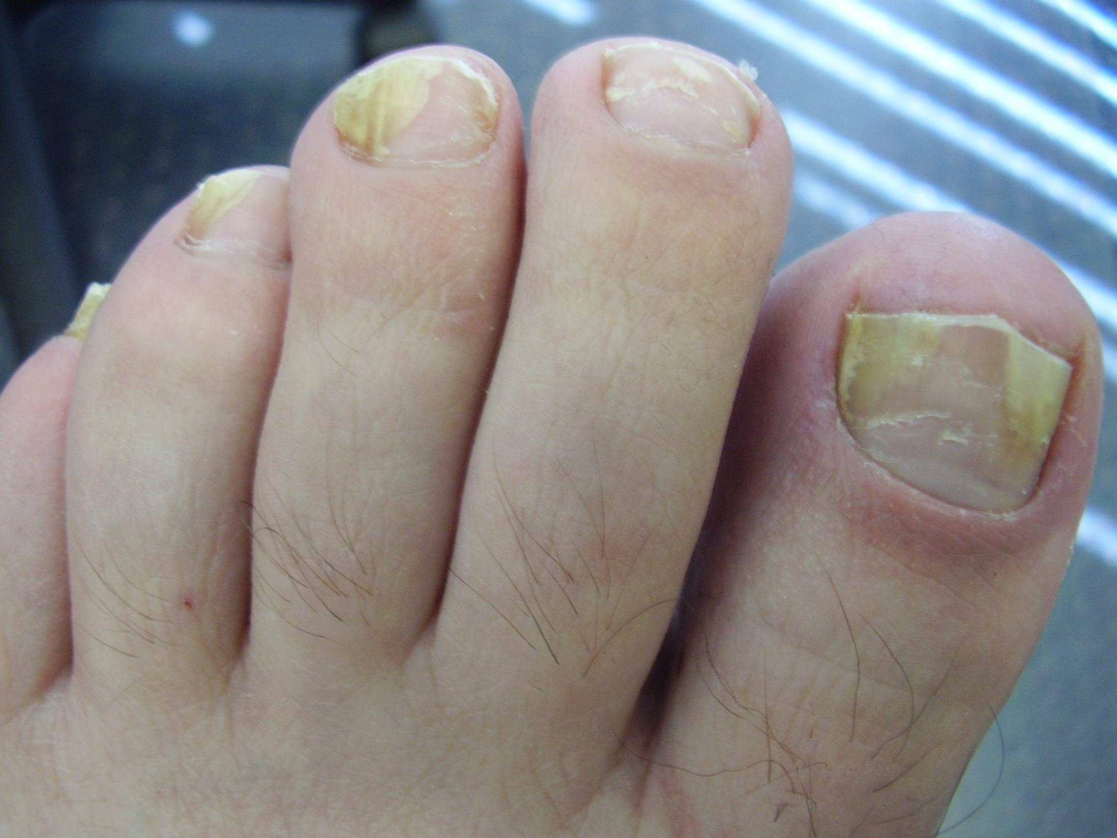 Ногтей грибок ногтей грибок ногтей