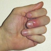 Воспаление вокруг ногтя