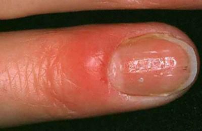 аллергия на порошок на руках фото