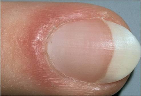 Лечение грибка ногтей лазером киев цена